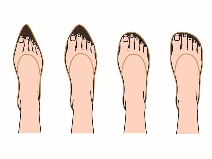 きつい靴は、足自体の運動を妨げます。
